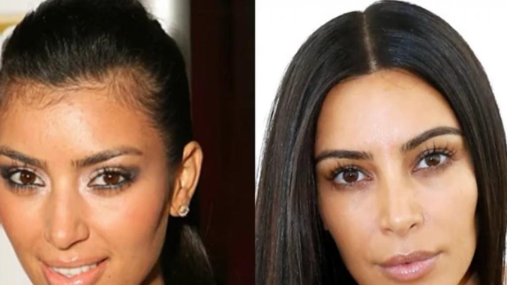 Vrouwen laten steeds meer sleutelen aan hun haargrens